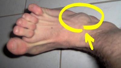 La varicosité sur les pieds comme se soigne