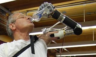 Luke Arm. O braço robótico de Dean Kamen