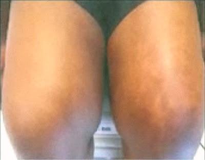 Nata de remoção de pigmentação de uma cara