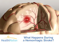 Myths and Facts About Stroke