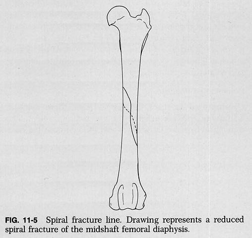 Spiral Fracture-4.bp.blogspot.com