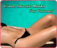 Erase Stretch Marks For Good