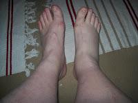 Blodpropp i foten symptom