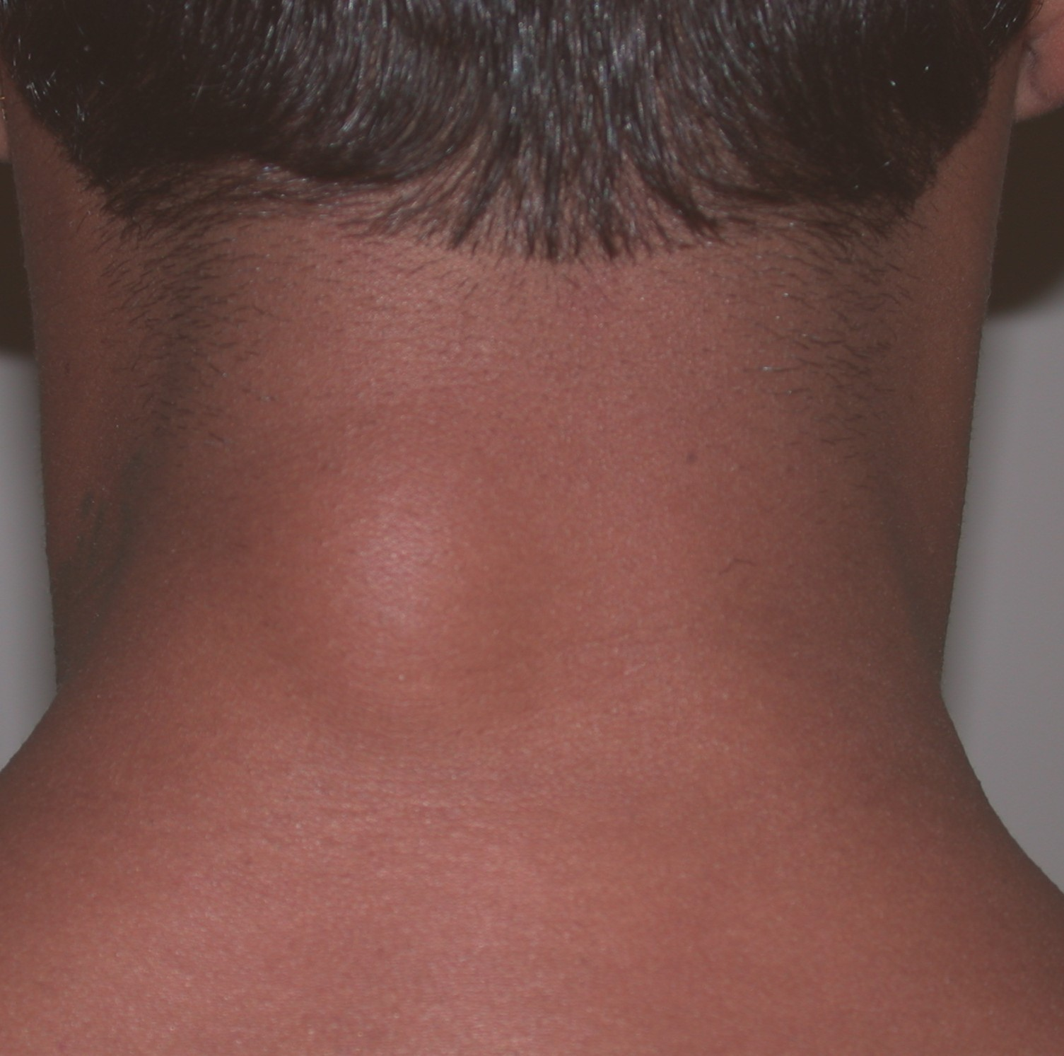 Lipoma (Skin Lumps): Causes, Diagnosis and Treatments