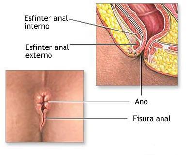 Dermatosis del rea perianal - sisbibunmsmedupe
