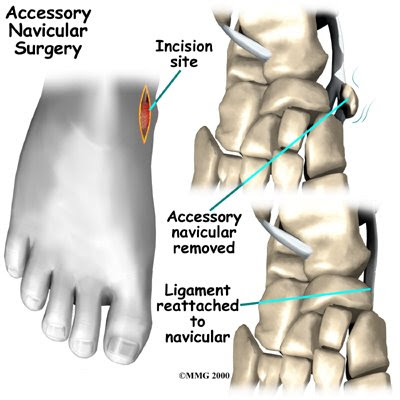 accessory navicular adult runner