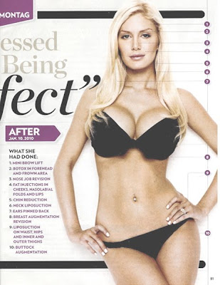 heidi montag surgery before after. heidi montag before and after