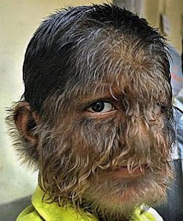 hairy face disease