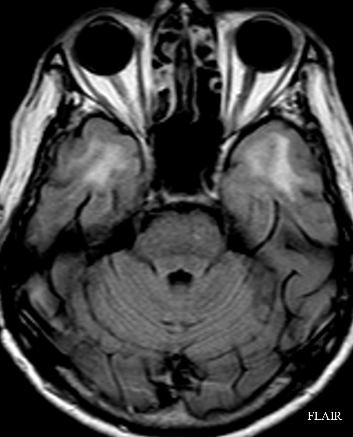 CASE 71 : 65 year-old woman with dementia-4.bp.blogspot.com