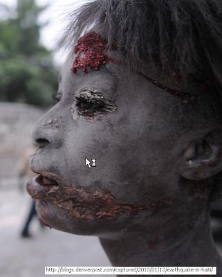 mulher haiti cara suja