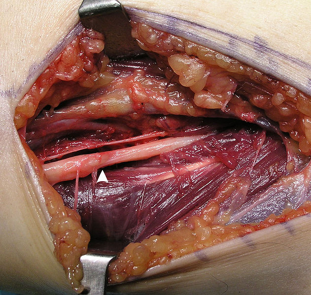 picture of cord lipoma inguinal hernia