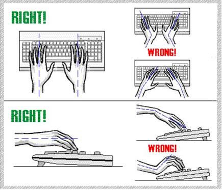 Bad Posture - c/s