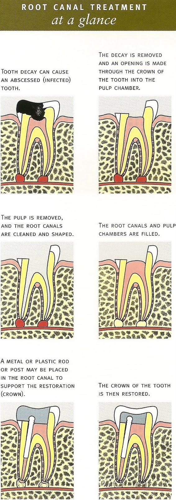 osteomyelitis of jaw bone pdf