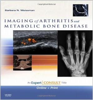 Imaging of Arthritis and Metabolic Bone Disease IMAGING+OF+ARTHRITIS