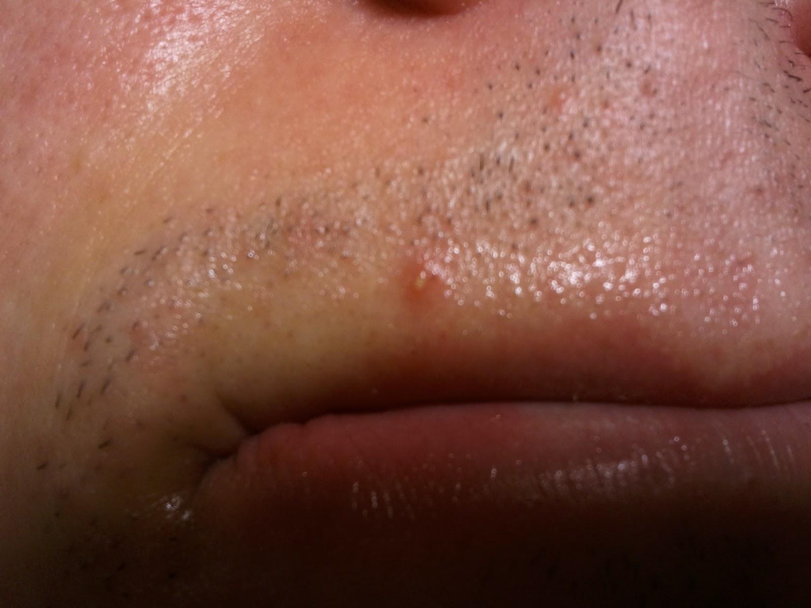 lanolin acne