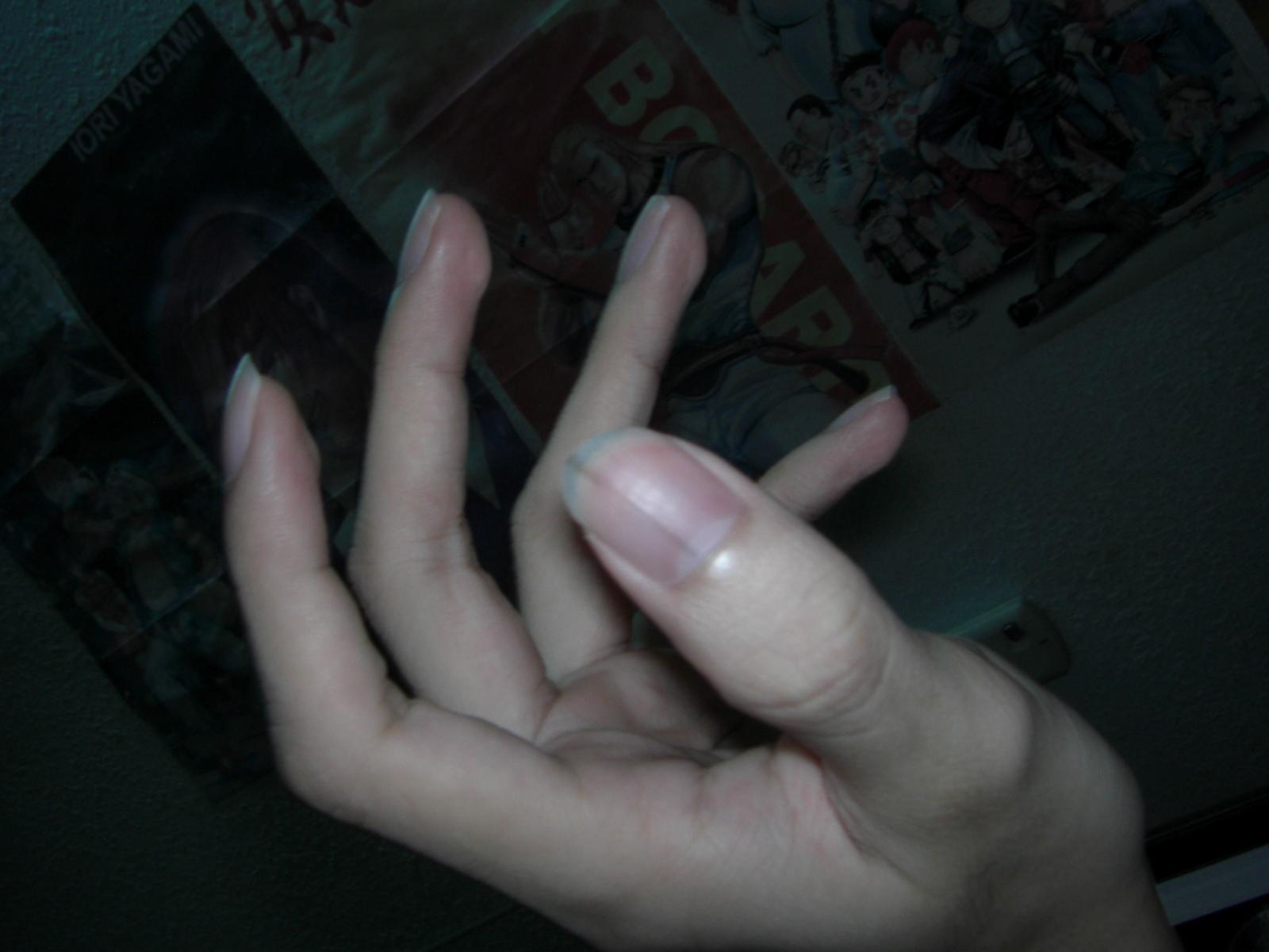 Black Line On Fingernail