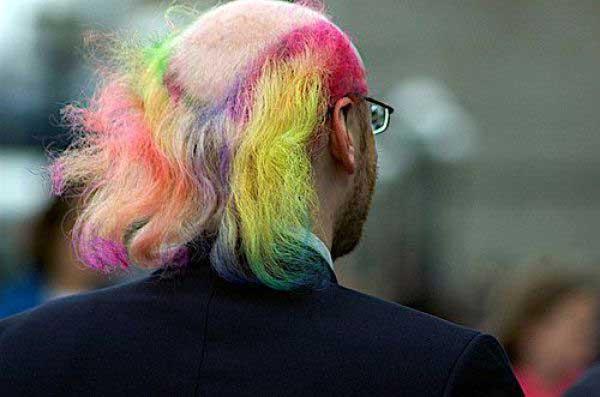 http://4.bp.blogspot.com/_f98opUNuVXc/S7zV8t0XJ_I/AAAAAAAAOlE/bzkgYbgcevc/s1600/Male+pattern+baldness.jpg