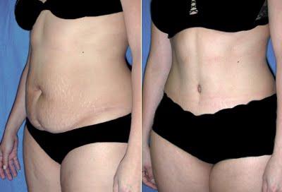 Abdominoplastia Fotos Antes E Depois Cirurgia Pl Stica Em S O