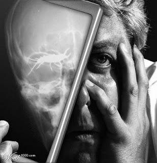 earwig x-ray