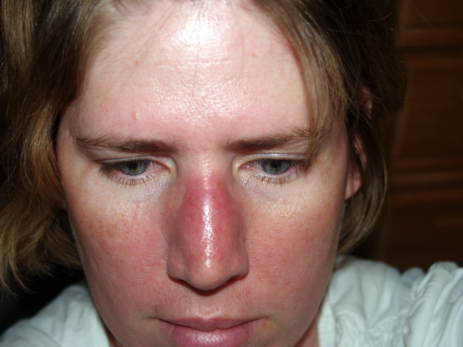 Treatment of facial cellulitis consider