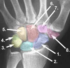 Roentgenbild einer menschlichen Hand