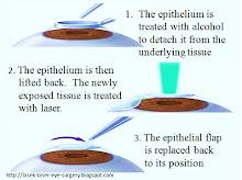 LASEK laser eye surgery