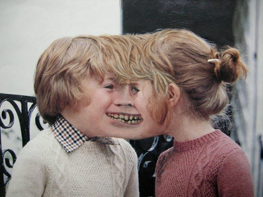 Waardenburg Syndrome Waardenburg Syndrome Type 2