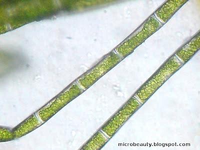 Algae under the Microsecope
