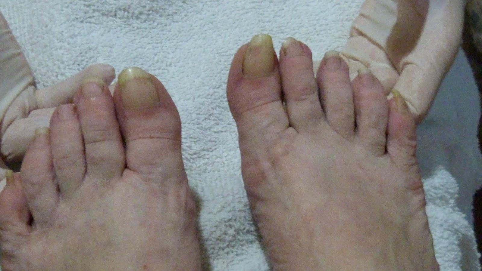 El centro del tratamiento la psoriasis donetsk