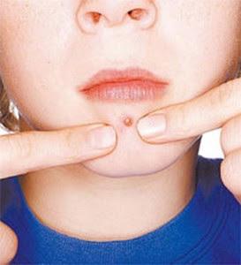 Como evitar cravos e espinhas