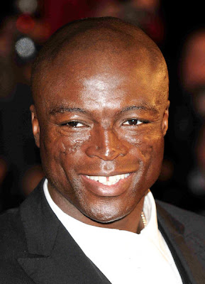 What happened to seal's face The Oprah Winfrey Show report