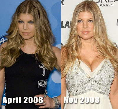 Fergie breast implants Surgery Pics