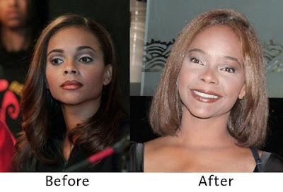 Lark voorhies plastic surgery