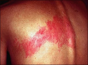 herpes zoster essay shingles