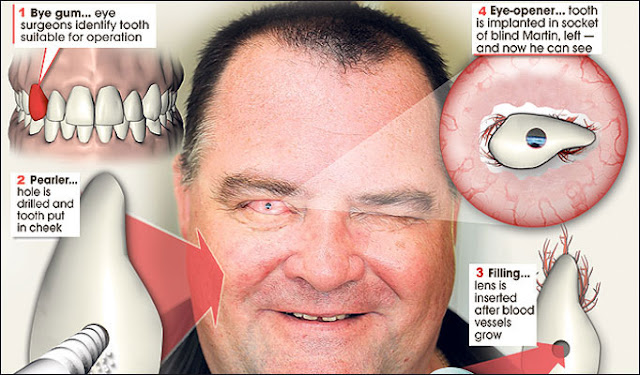 Blind man sees after tooth inserted into eye