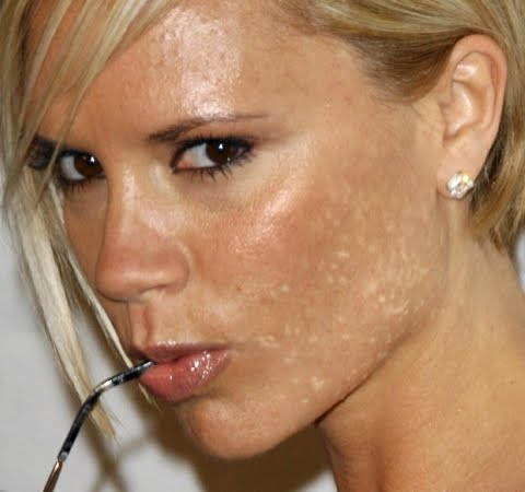 Even Posh Spice has Bad Skin