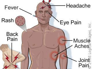 http://4.bp.blogspot.com/_gQbLhYQDz7U/TBylsWAEk_I/AAAAAAAAC4g/uEdGtwNjTsc/s400/dengue%2Bfever.jpg