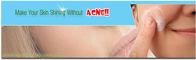 .:Remove ACNE Forever:.