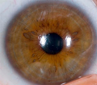 iridology of iris and eye