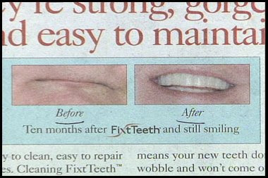 really stupid ad for dentist before and after teeth shot