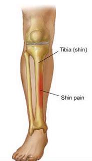 Shorey: Anatomy of a Shin Splint