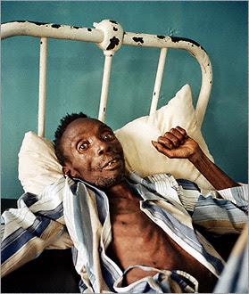 Tanda-Tanda Orang Terkena HIV