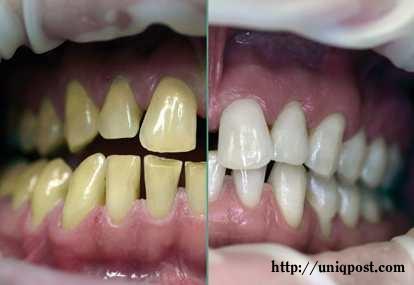 Kloningan Cara Mudah Memutihkan Gigi Yang Kuning