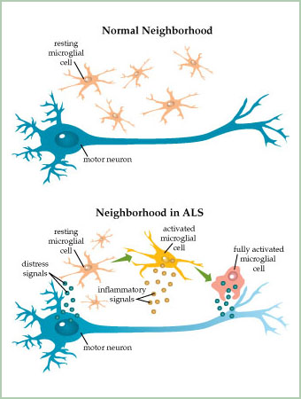 Amyotrophic Lateral Sclerosis An Explanation Lesson