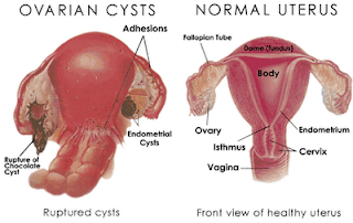 Cure Cysts On Ovaries Naturally
