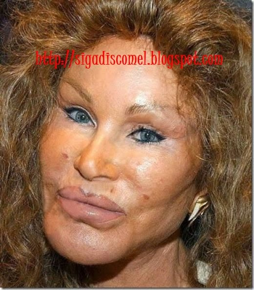 awful plastic surgery. of bad plastic surgery.