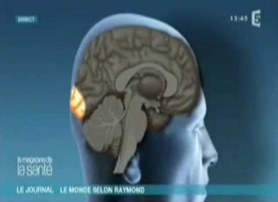 Cerveau de Raymond Domenech
