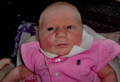 http://4.bp.blogspot.com/_htnO88sjVLY/SYmAexux2nI/AAAAAAAAANw/q2Ak7goHUg8/s400/ugly+baby.jpg