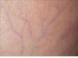 Her Skin