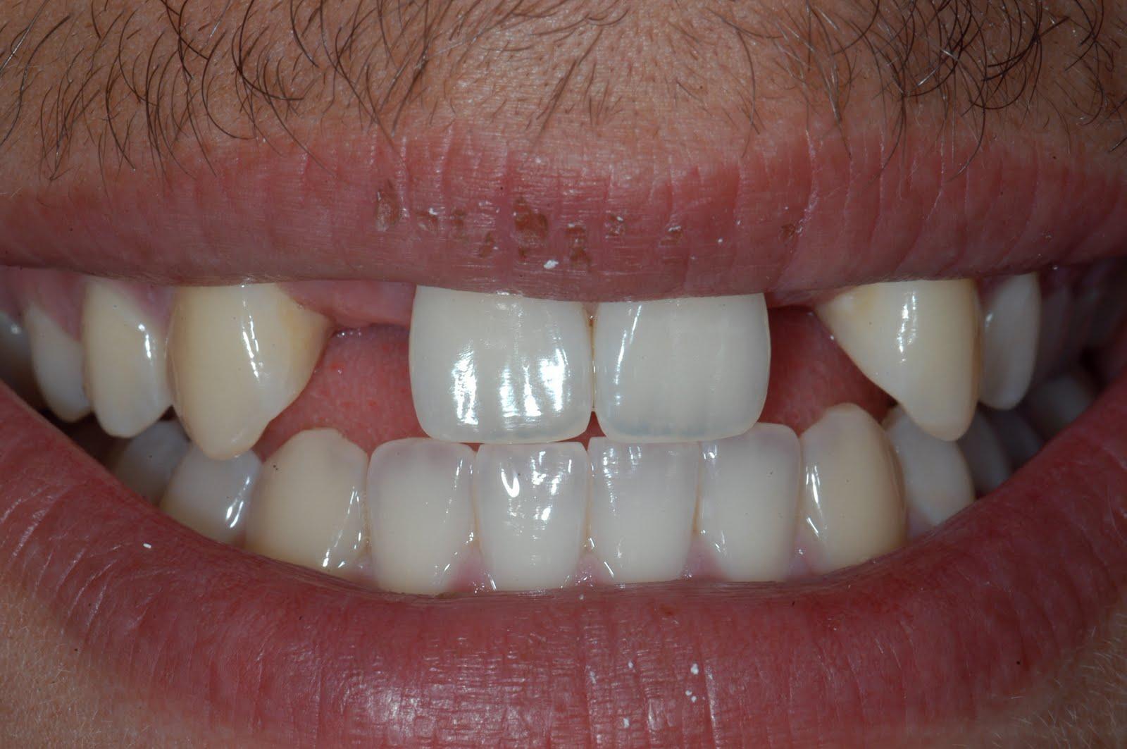 dr benoit paquin  c u0026 39 est quoi un implant